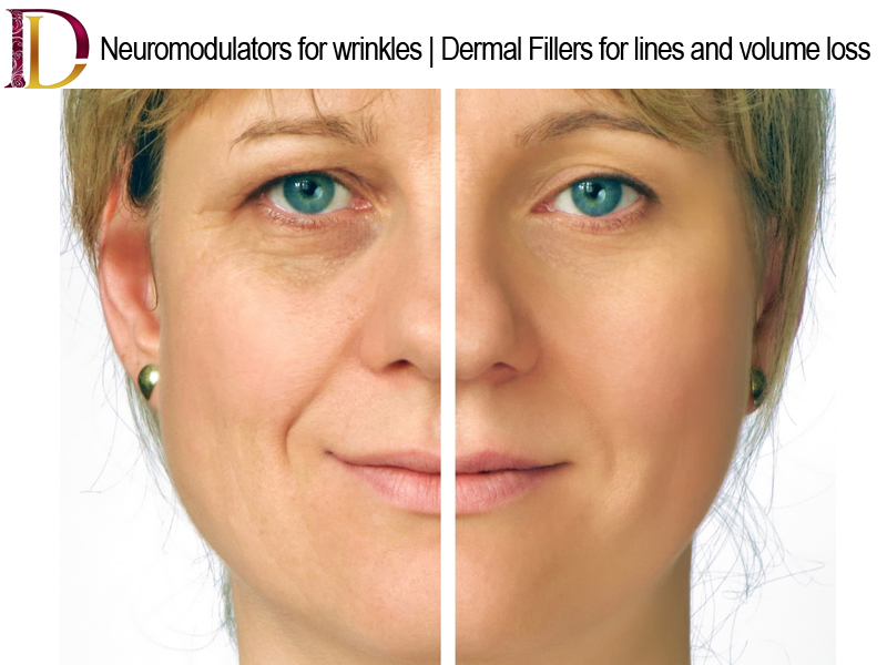 Consider, that Commercial facial line fillers